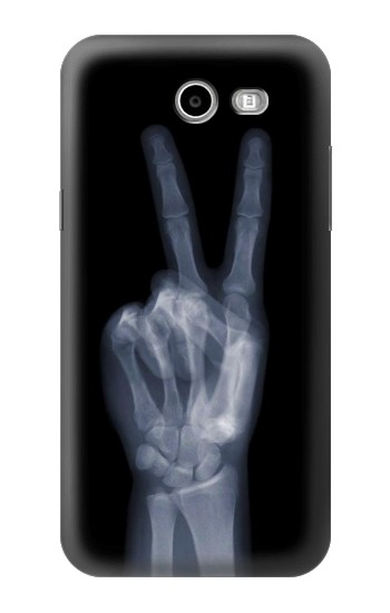 Printed X-ray Peace Finger Samsung Galaxy J3 Emerge Case