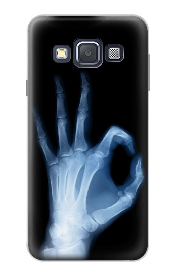 Printed X-Ray Hand Sign OK Samsung Galaxy A3, A3 Duos Case