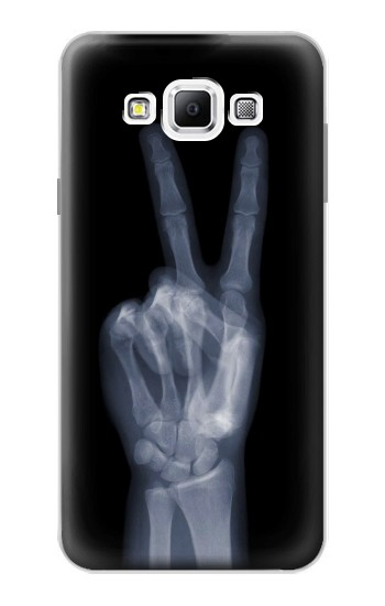 Printed X-ray Peace Finger Samsung Galaxy A7, A7 Duos Case