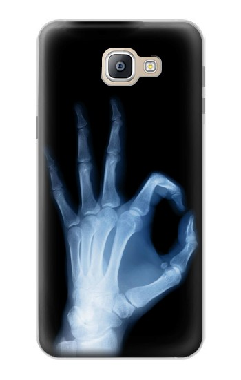 Printed X-Ray Hand Sign OK Samsung Galaxy A9, A9 Pro (2016) Case