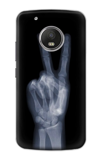 Printed X-ray Peace Finger Apple iPod Touch 5G Case
