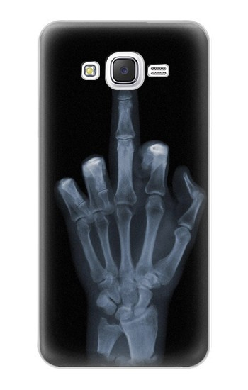 Printed X-ray Hand Middle Finger Samsung Galaxy J5 Case