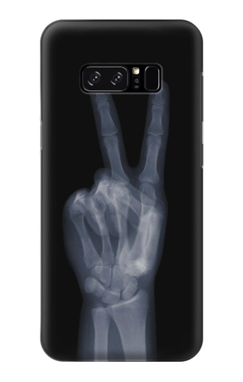 Printed X-ray Peace Finger HTC Desire 320 Case