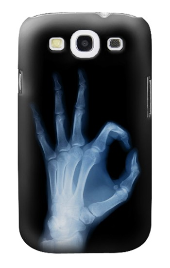 Printed X-Ray Hand Sign OK Samsung Galaxy S3 Case