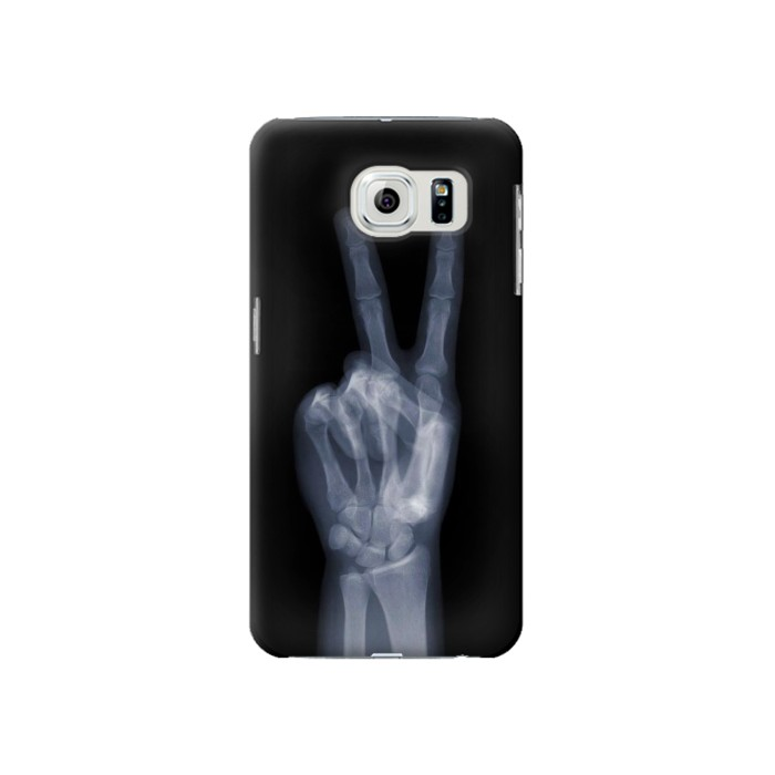 Printed X-ray Peace Finger Samsung Galaxy S6 Case
