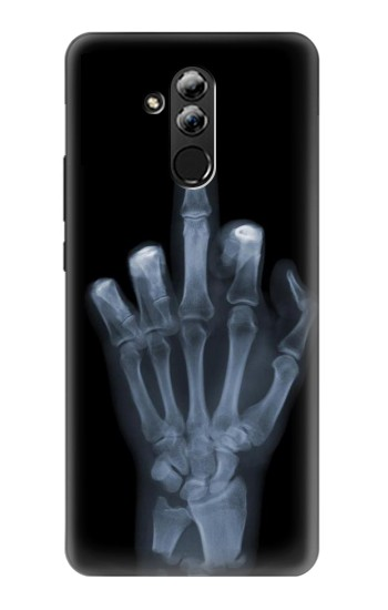 Printed X-ray Hand Middle Finger Huawei Mate 20 lite Case