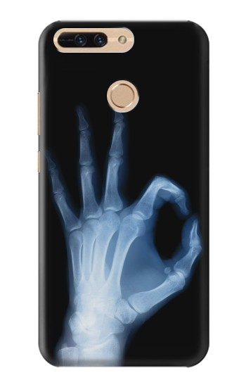 Printed X-Ray Hand Sign OK Huawei Ascend MATE7 Case