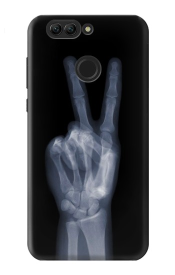 Printed X-ray Peace Finger Huawei nova 2 Case