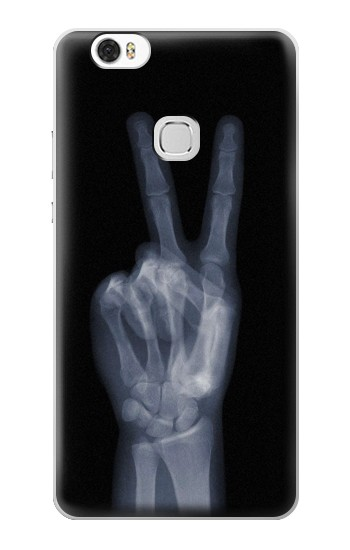 Printed X-ray Peace Finger Huawei Ascend G630 Case