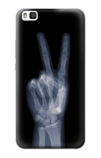 Printed X-ray Peace Finger Huawei P8 Case