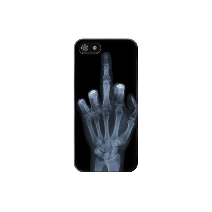 Printed X-ray Hand Middle Finger Iphone 5 Case