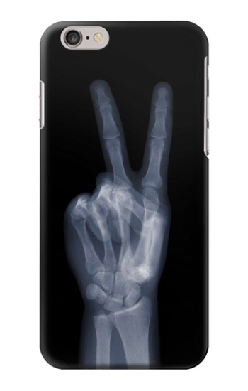 Printed X-ray Peace Finger Iphone 6 Case