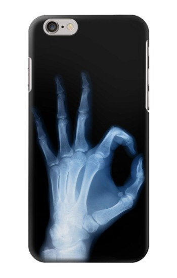 Printed X-Ray Hand Sign OK Iphone 6 Case