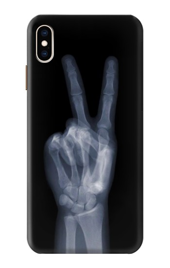 Printed X-ray Peace Finger iPhone XS Max Case