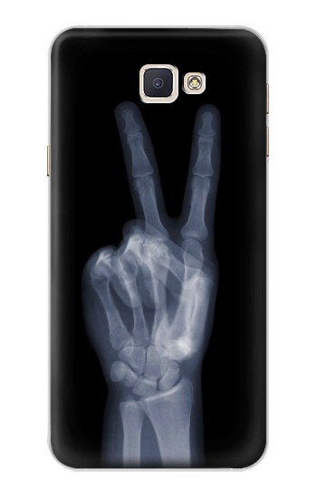 Printed X-ray Peace Finger Samsung Galaxy A8, A8 Duos Case