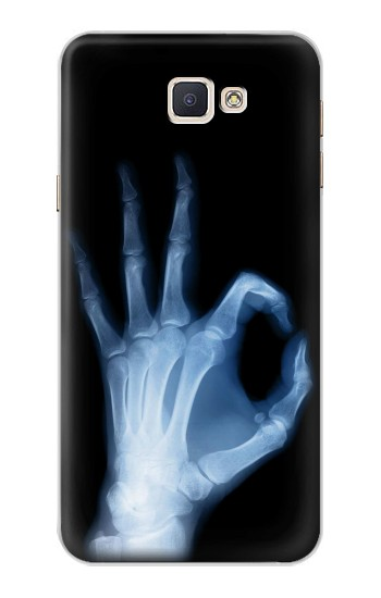 Printed X-Ray Hand Sign OK Samsung Galaxy A8, A8 Duos Case