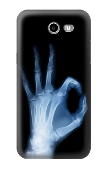 Printed X-Ray Hand Sign OK Asus Zenfone 2 Laser ZE500KL Case