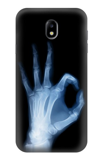 Printed X-Ray Hand Sign OK Samsung Galaxy Core I8260 Case