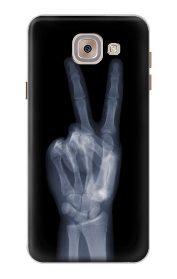 Printed X-ray Peace Finger Asus Zenfone 5 A500CG Case