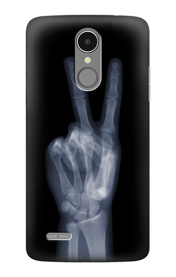 Printed X-ray Peace Finger LG K8 (2017) Case