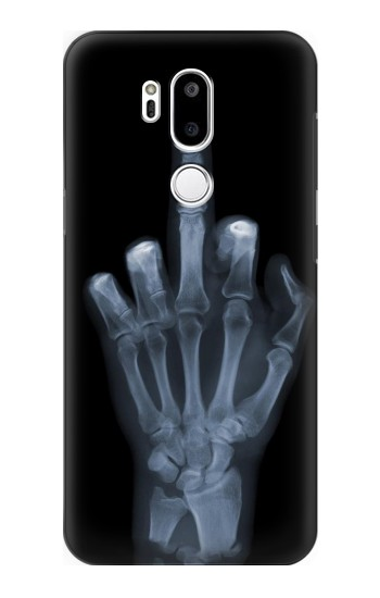 Printed X-ray Hand Middle Finger LG G7 ThinQ Case