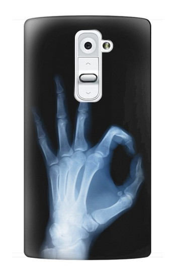Printed X-Ray Hand Sign OK LG G2 Case