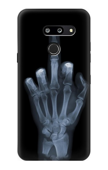 Printed X-ray Hand Middle Finger LG G8 ThinQ Case