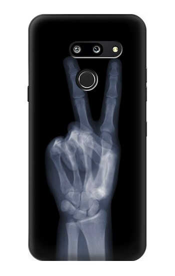 Printed X-ray Peace Finger LG G8 ThinQ Case