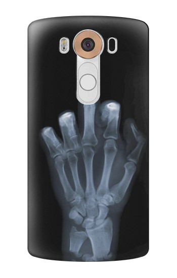 Printed X-ray Hand Middle Finger LG V10 Case