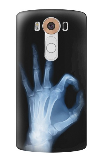 Printed X-Ray Hand Sign OK LG V10 Case