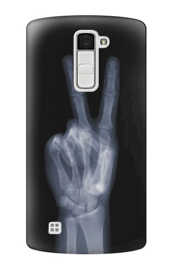 Printed X-ray Peace Finger LG K10 Case