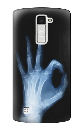 Printed X-Ray Hand Sign OK LG K10 Case