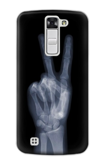 Printed X-ray Peace Finger LG G Stylo Case
