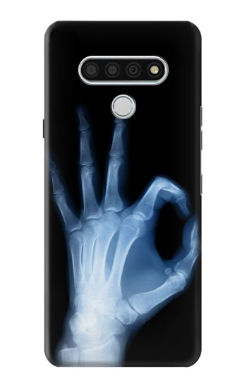 Printed X-Ray Hand Sign OK LG Stylo 6 Case