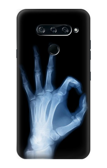 Printed X-Ray Hand Sign OK LG V40 ThinQ Case
