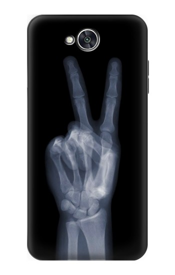Printed X-ray Peace Finger LG X power2 Case