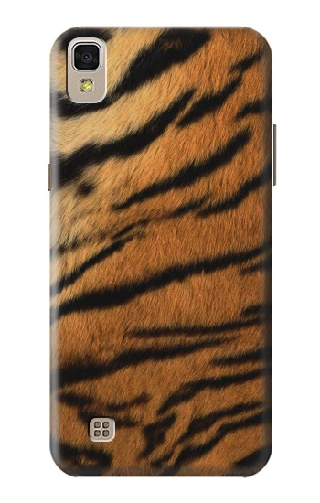 Printed Tiger Stripes Texture LG F70 D315 Case
