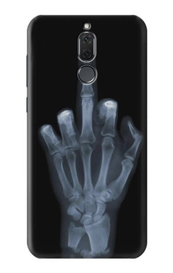 Printed X-ray Hand Middle Finger Huawei Mate 10 Lite Case