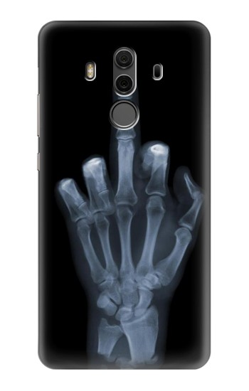 Printed X-ray Hand Middle Finger Huawei Mate 10 Pro, Porsche Design Case