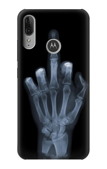 Printed X-ray Hand Middle Finger Motorola Moto E6 Plus Case