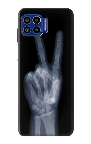Printed X-ray Peace Finger Motorola One 5G Case
