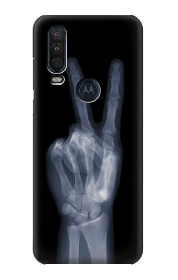 Printed X-ray Peace Finger Motorola One Action (Moto P40 Power) Case