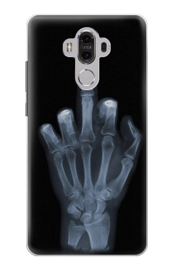 Printed X-ray Hand Middle Finger Huawei Mate 8 Case