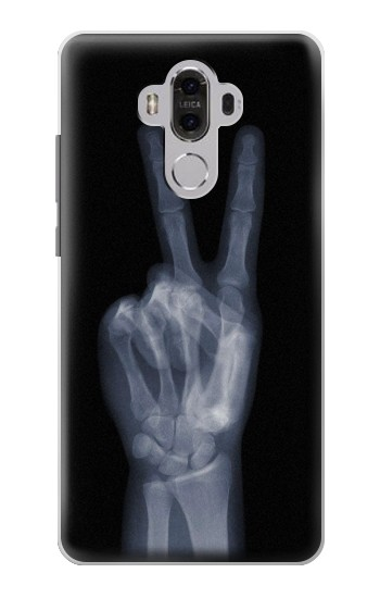 Printed X-ray Peace Finger Huawei Mate 8 Case