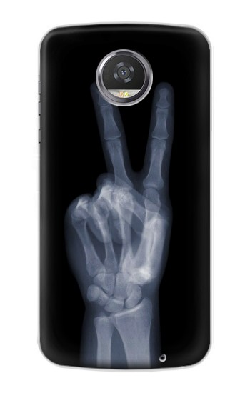 Printed X-ray Peace Finger HTC Desire 310 Case