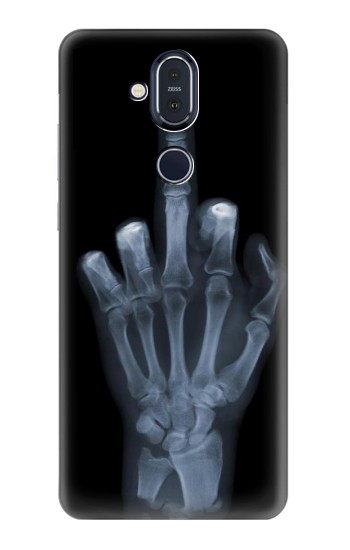 Printed X-ray Hand Middle Finger Nokia 8.1, Nokia X7 Case