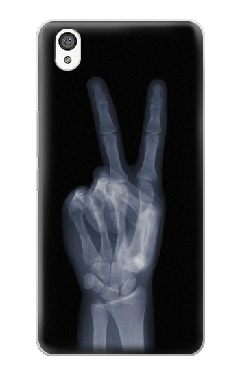 Printed X-ray Peace Finger OnePlus X Case
