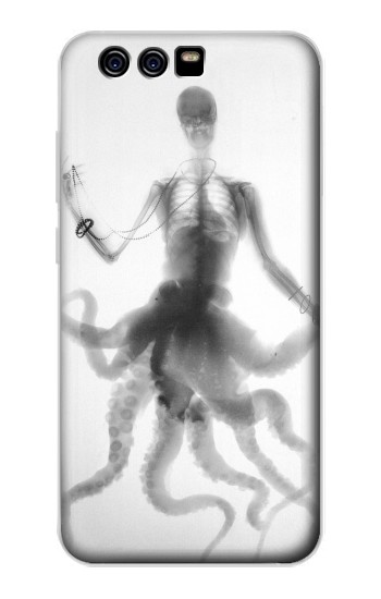 Printed Skull Octopus X-ray alcatel Idol 2 Mini Case