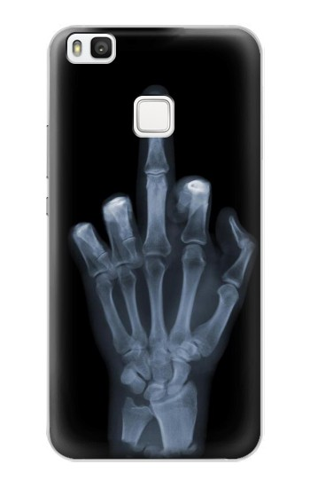 Printed X-ray Hand Middle Finger alcatel Idol 2 S Case