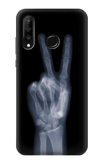 Printed X-ray Peace Finger Huawei P30 lite Case